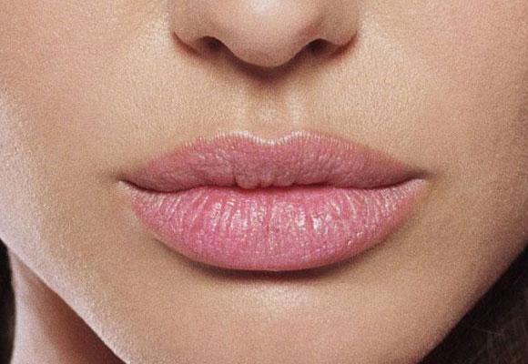 labbra con angoli all'insù