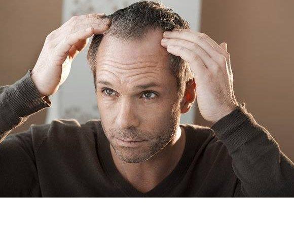 Come evitare la caduta dei capelli