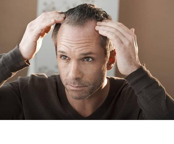 Perché cadono i capelli? Consigli utili e rimedi