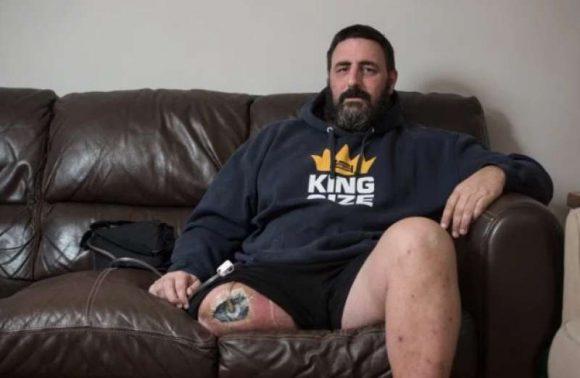Uomo morso da un ragno mentre lavorava: medici costretti ad amputargli una gamba