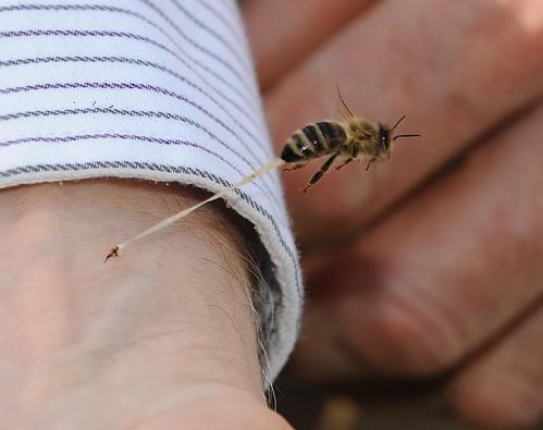 puntura di una vespa
