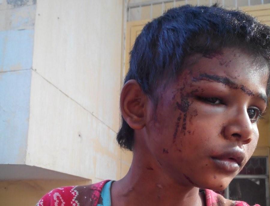 Bambina di 10 anni subiva maltrattamenti inimmaginabili, ecco la sua storia