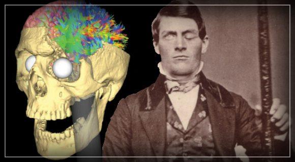 Lo strano caso di Phineas Gage: c'è un collegamento tra cervello ed emozioni?
