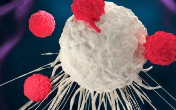 Tumore curabile con una nuova terapia: Car-T arriva anche in Europa