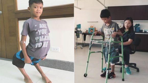Aldrin prigioniero delle sue gambe, affetto da una malformazione rarissima, tornerà a camminare