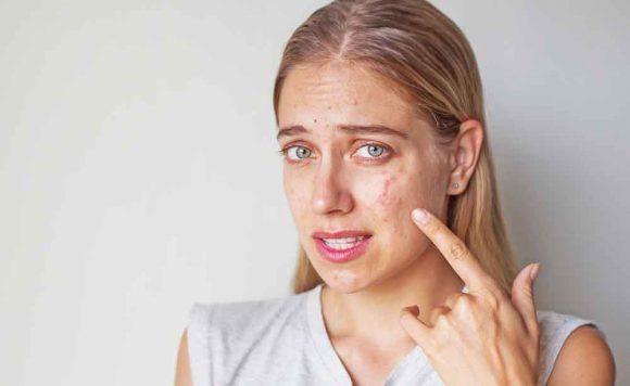 Allarme rosso di farmaco anti-acne: induce al suicidio, allarme anche in Italia