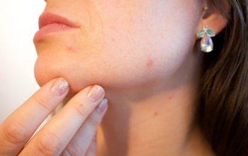 vaccino contro l'acne
