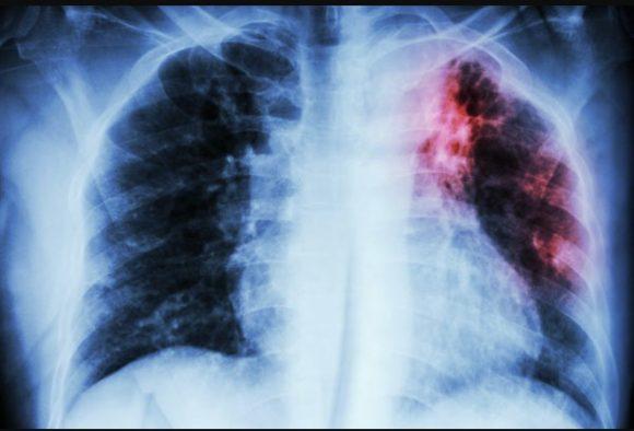 Tubercolosi: muore una dottoressa di 60 anni, ecco dove