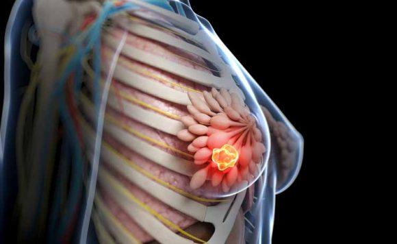 Tumore al seno: nuove speranze di cura dagli antibiotici, ecco di cosa si tratta