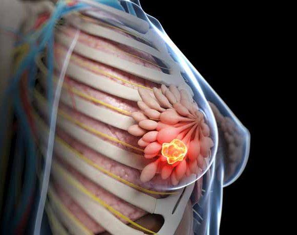 tumore mammario