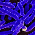 Allarme escherichia coli: formaggio italiano contaminato