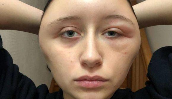 Dopo aver fatto la tinta per capelli si ritrova con una forte reazione allergica