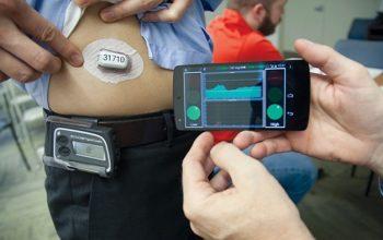 Per la prima volta in Italia: pancreas artificiale