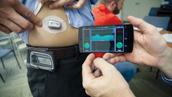 Diabete: il pancreas artificiale, l'insulina erogata in automatico