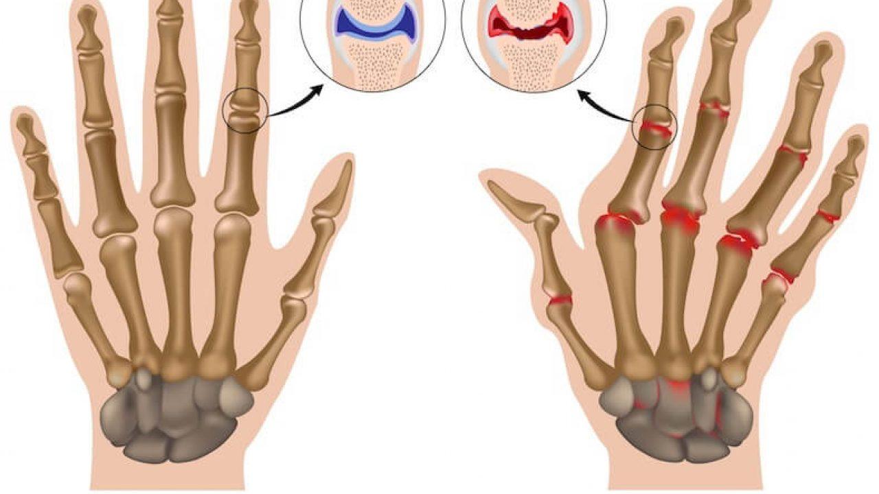 Artrite reumatoide, attenzione alle anomalie interstiziali polmonari