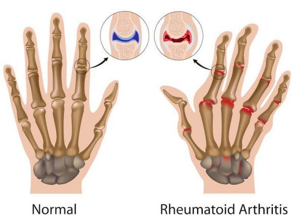 Cos'è l'artrite reumatoide? Tutte le informazioni da sapere