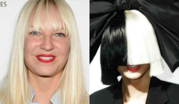 La cantante Sia annuncia: 'Ho la sindrome di Ehlers-Danlos'